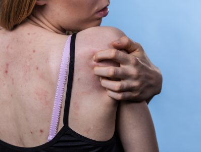 Acne – a new NICE guideline