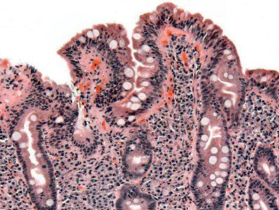Nice | Coeliac disease