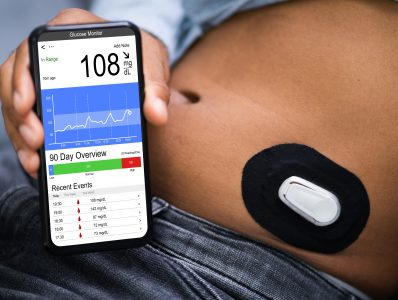 Dexcom G6 for continuous glucose monitoring