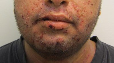 Impetigo, antibiotic use and hydrogen peroxide 1% cream