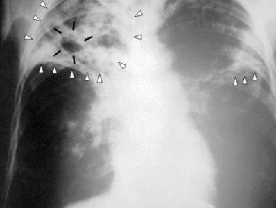 Nice | Tuberculosis (TB)