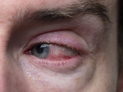 Blepharitis, flashers and floaters