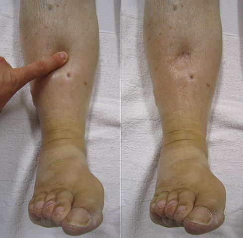 Nice | Dabigatran for the treatment and prevention of DVT and PE