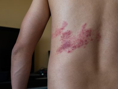 Risk of cancer diagnosis after herpes zoster (shingles)